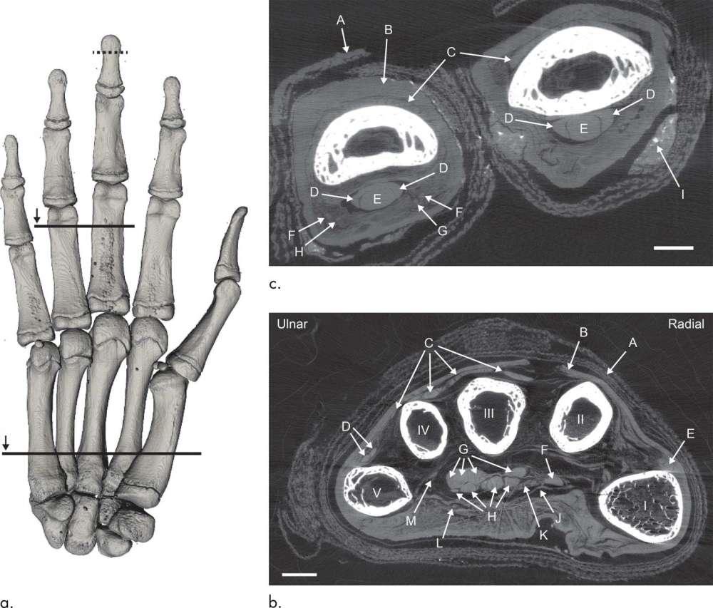 Tomografía computarizada de una mano momificada.