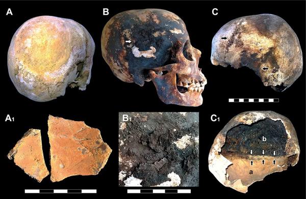 Incrustaciones de minerales rojos y negros en los cráneos de las víctimas.