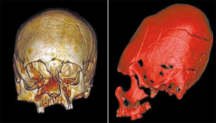Cráneos alargados de los hunos
