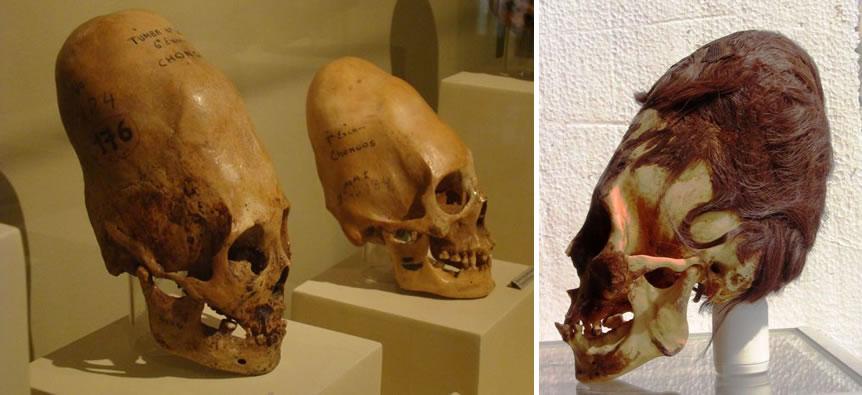 Cráneos Paracas