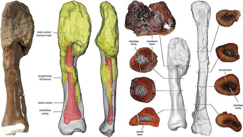Descubren cáncer en el fósil de un dinosaurio