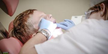 Evolución: cada vez más niños nacen sin muelas del juicio y con huesos adicionales