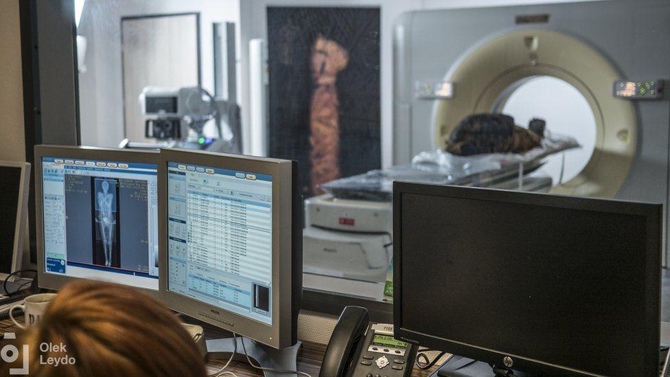 La momia egipcia embarazada fue sometida a estudios en un centro médico en Otwock, cerca de Varsovia, Polonia